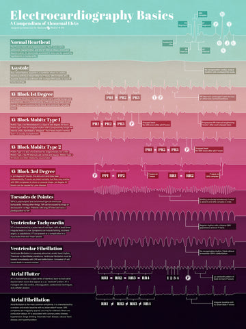 Electrocardiography Basics Poster