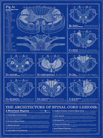 Spinal Cord Lesions poster