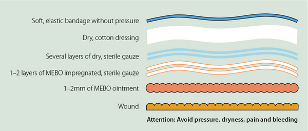 Dressing-wound-diagram
