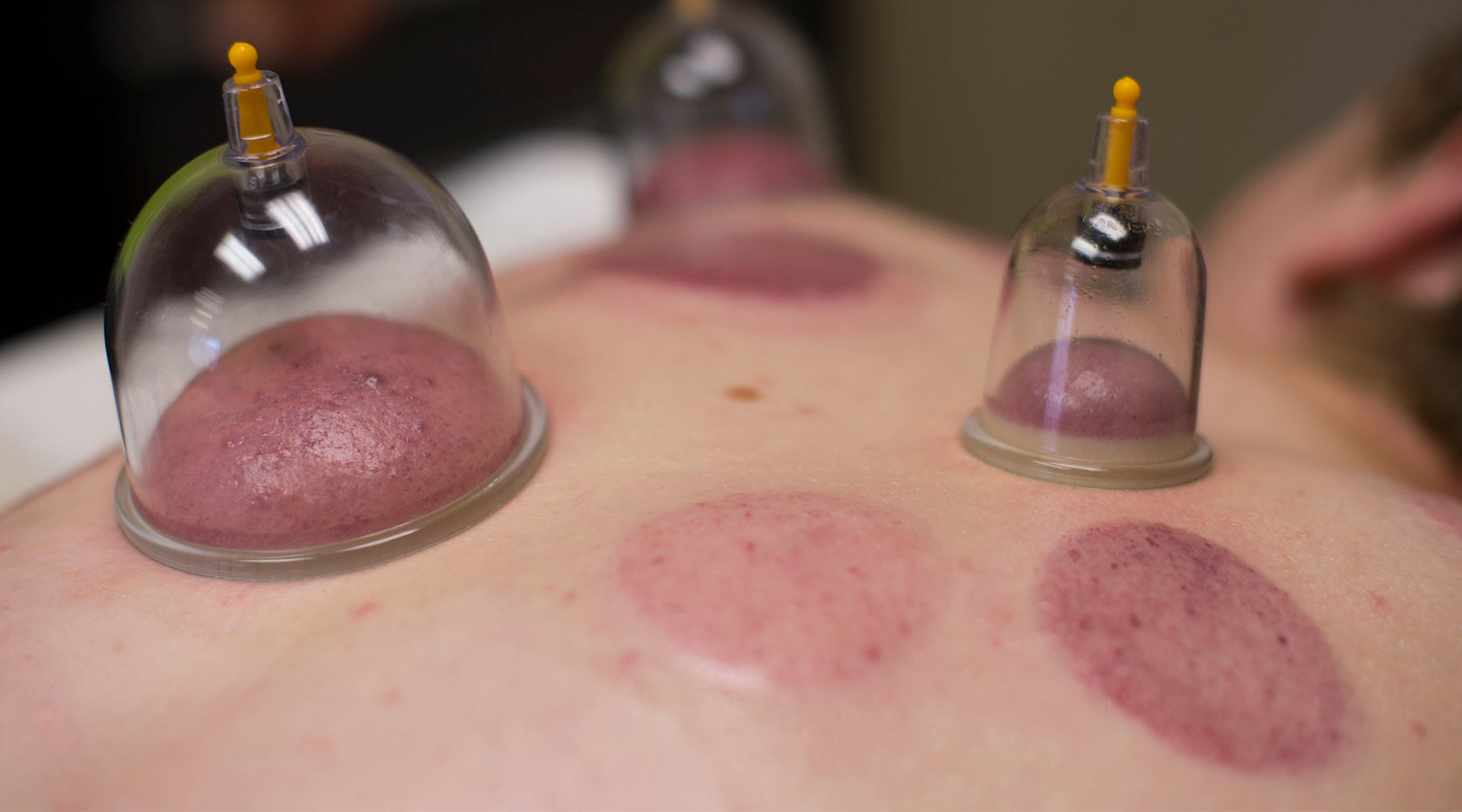 The Benefits of Cupping Therapy and Why You Need Cupping in Your Life