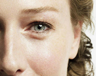 How to reduce puffy eyes and dark circles
