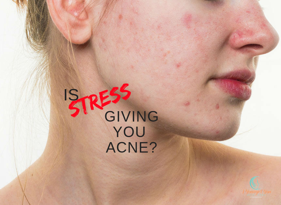 Is Stress Giving You Acne?
