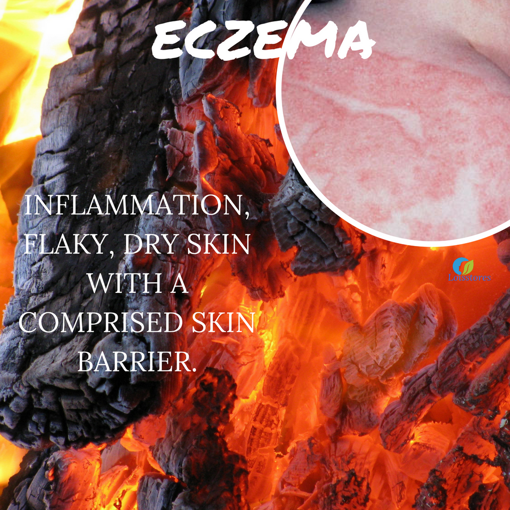 Eczema Sensitive Skin Type