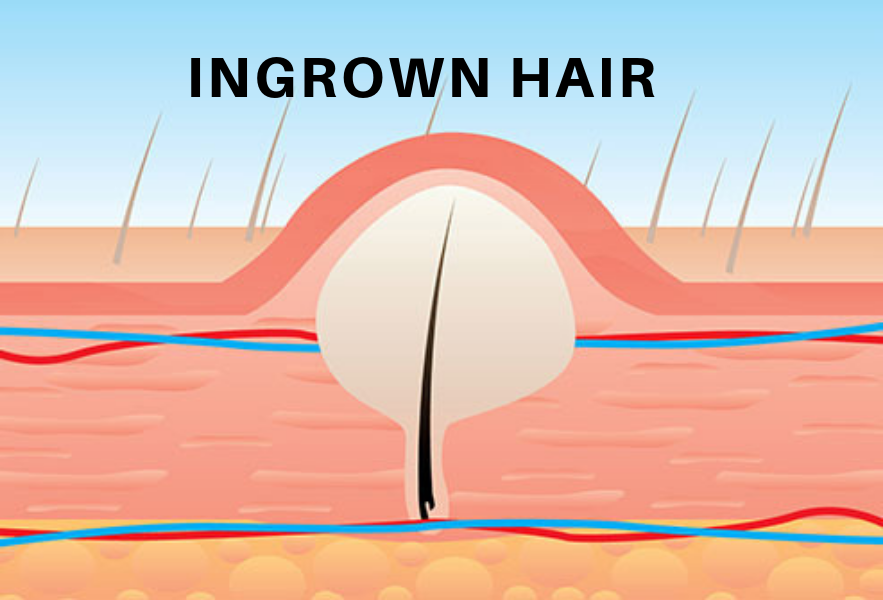 Ingrown Hair-Cause and Prevention