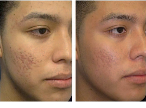 Before and After photo of a   a single fractional CO 2 treatment for acne scarring