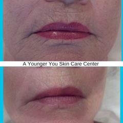 Before & After Antiaging2