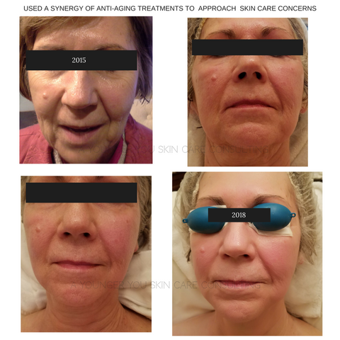 A Younger You Skin Care Cnnsulting Before And After Photo