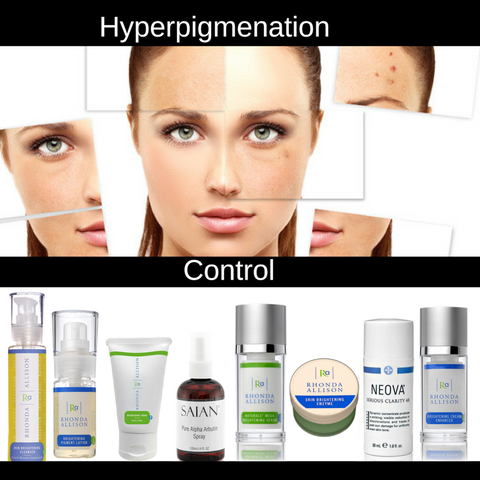 Loisstores Hyperpigmentation Control Products