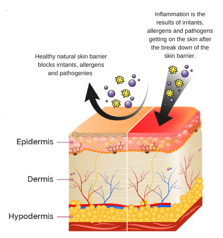 Inflammation caused by skin moisture barrier breakdown