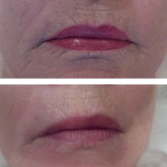 Skin Firming Packing Before & After Image