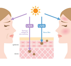 What is hyperpigmentation UVA image