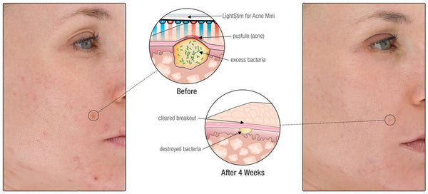 LightStim for Acne Before & After