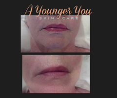 a younger you facial services before and after