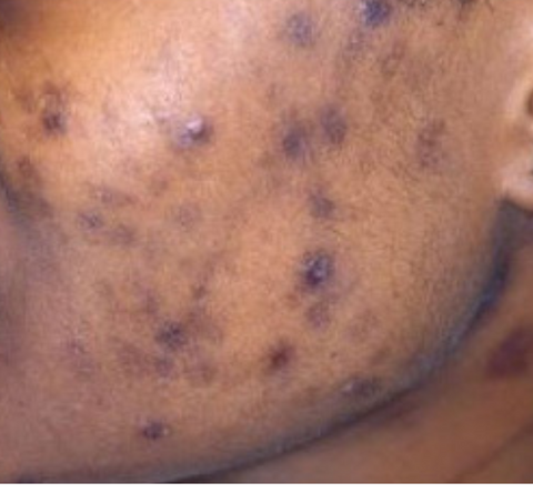hyperpigmentation from acne
