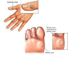 Warts on hands and feet