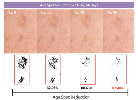 brown spots reduction in 56 days