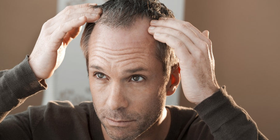 How To Know If You Really Are Going Bald!