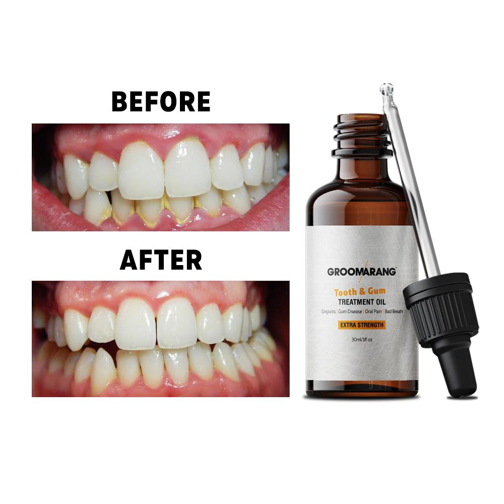 Groomarang Extra Strength Tooth & Gum Treatment Oil 30ml, Mouthwash - Image 1