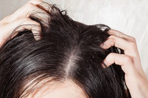 How to Treat an Oily Scalp