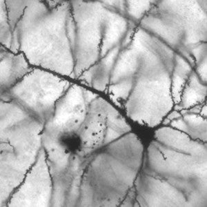 Image of a pyramidal neuron from an electron microscope. This is the image used in the pendant.