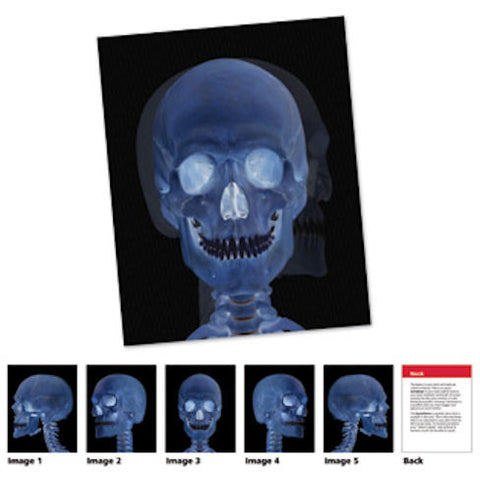 Human Body X-Ray Card Set - EducationalLearningGames.com