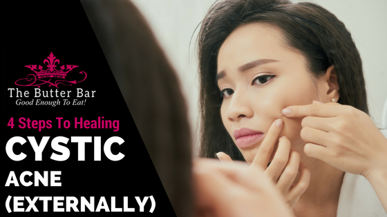 4 Steps To Healing Cystic Acne (Externally)