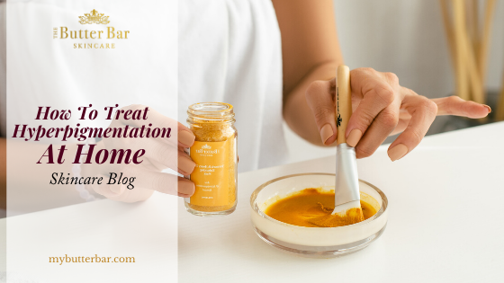 How To Treat Hyperpigmentation At Home