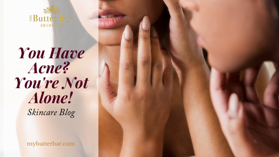 You Have Acne? You're Not Alone!
