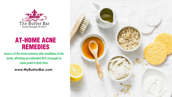 At-Home Acne Remedies