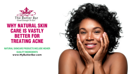Why Natural Skin Care Is Vastly Better for Treating Acne