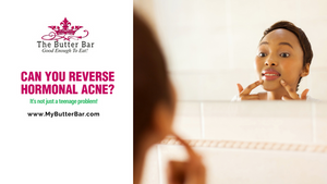 Can You Reverse Hormonal Acne?
