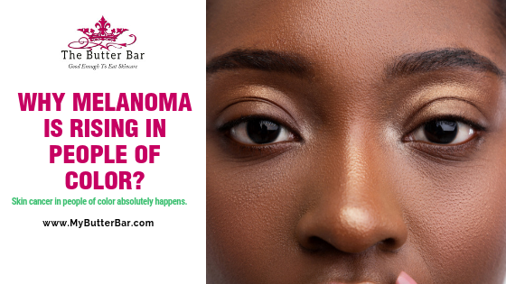 Why Melanoma is Rising in People of Color?