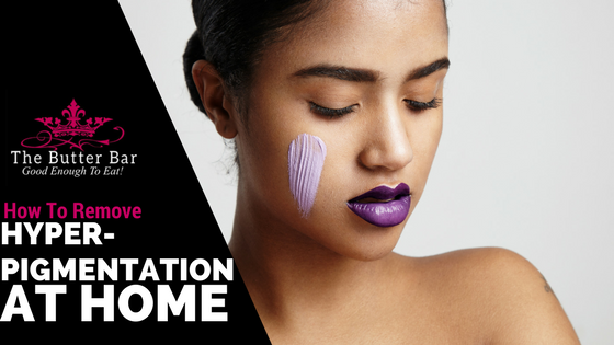 Remove Hyperpigmentation (Dark Spots)  at Home!