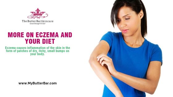 More on Eczema and Your Diet