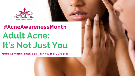 Adult Acne- It's More Common Than You Think