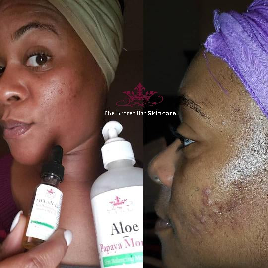 Melan-In Skin Nourishing Serum+ MPF - Natural Skincare