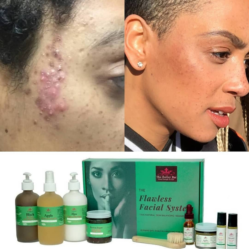 The Flawless Facial System-COMPLETE VEGAN Acne & Hyperpigmentation  (for Oily Skin) - Natural Skincare