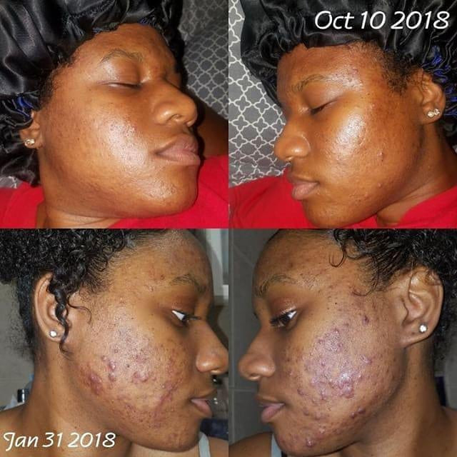 The Flawless Facial System-COMPLETE Acne & Hyperpigmentation kit (for Dry/Normal/Combination Skin) - Natural Skincare
