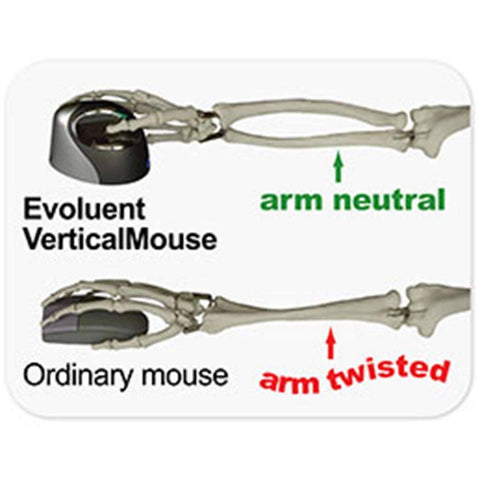 Evoluent Vertical Ergonomic Mouse 4 Right Bluetooth; VM4RB