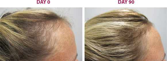 Viviscal-before-after