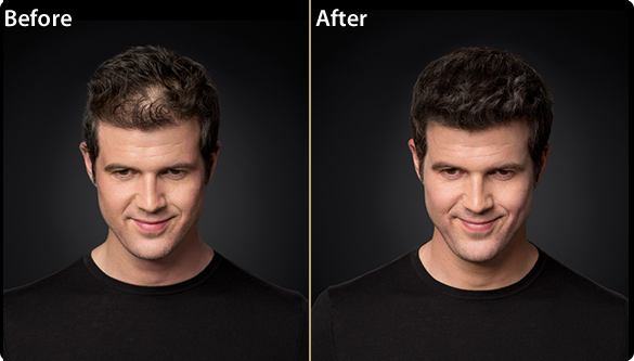 Toppik Men Before and After Preview