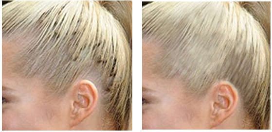 Before and After Extension