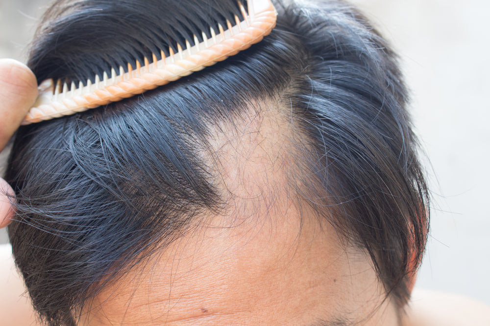Causes And Treatments Of Hair Loss From Alopecia Areata