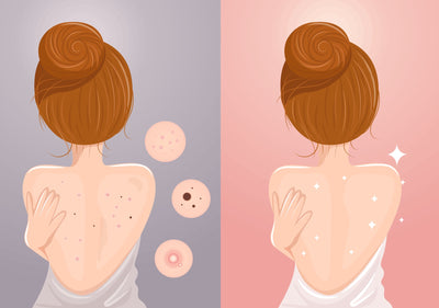 How to Stop Back Acne Scars For Good