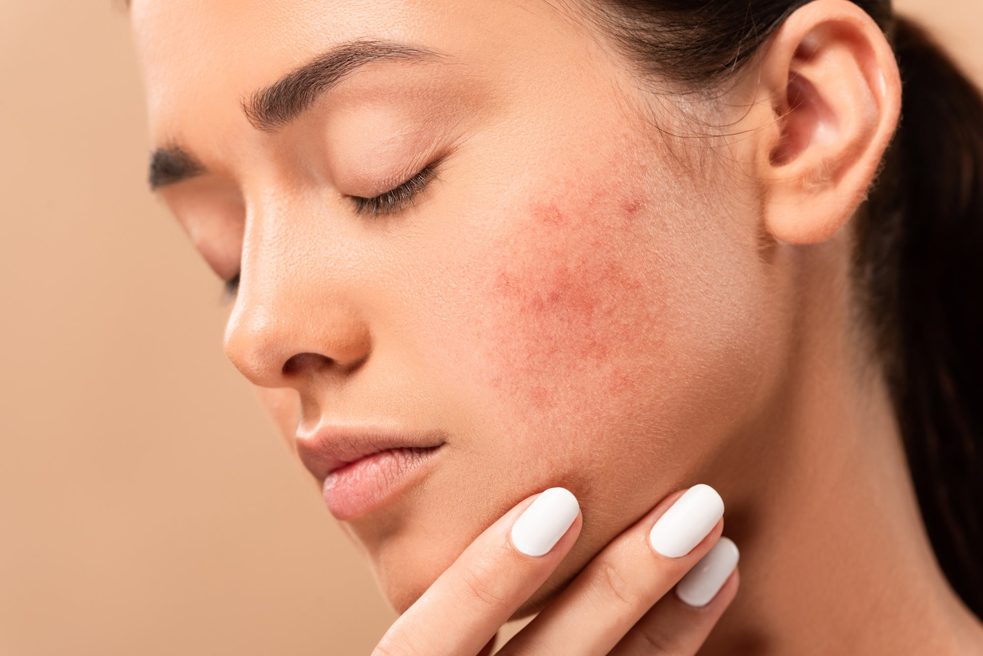 Is there a way to stop acne scarring?