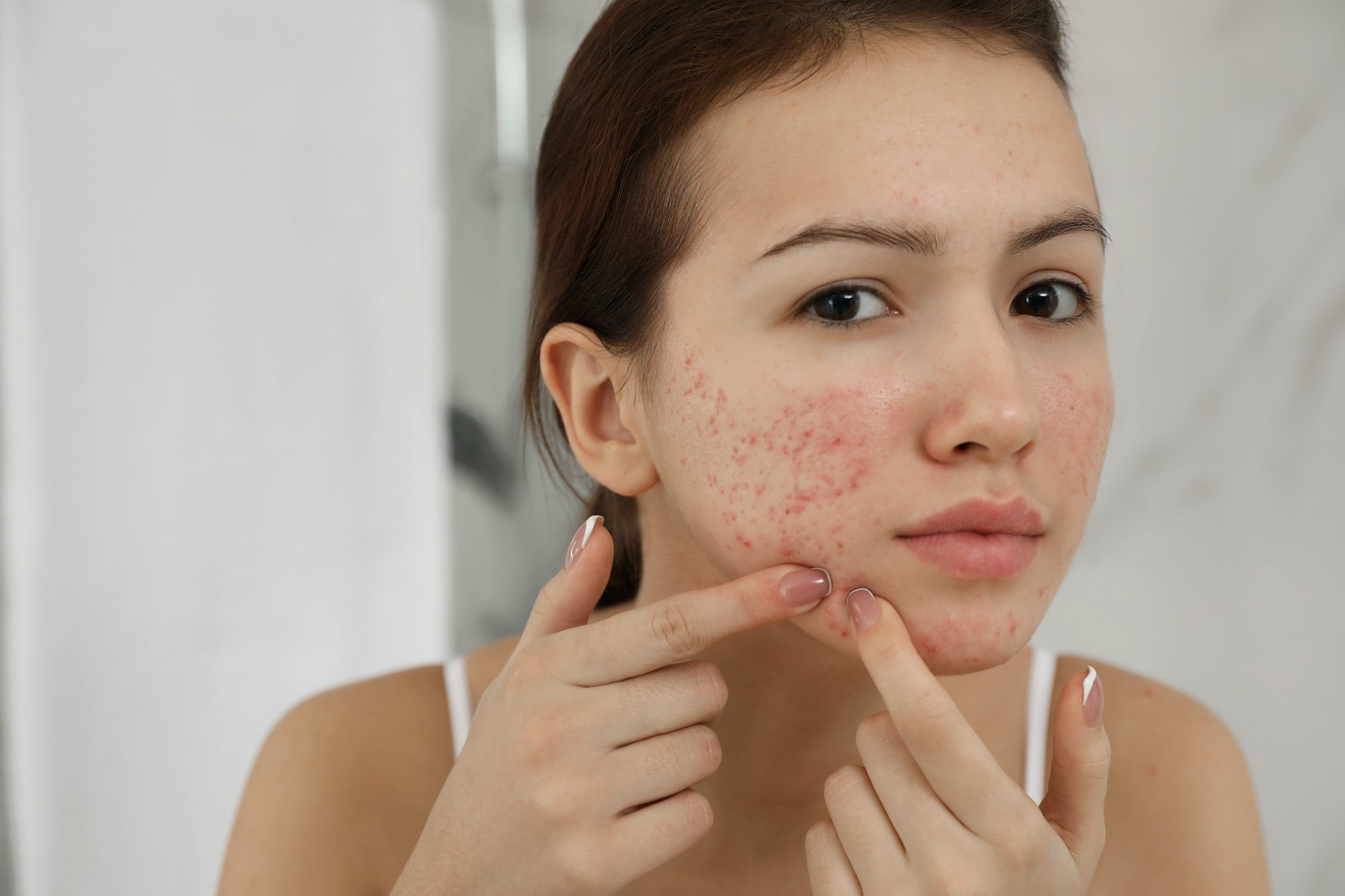 5 Types Of Acne Scars And Why You Should Care