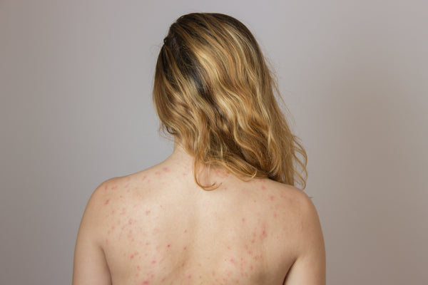 Young woman with body acne on back bacne
