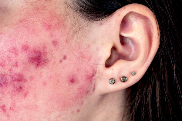 Photo example of cystic acne