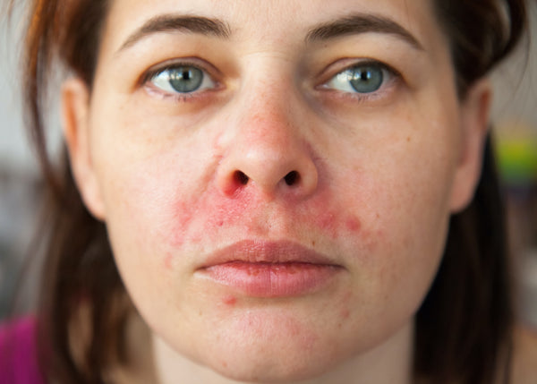close-up of woman with rash on face
