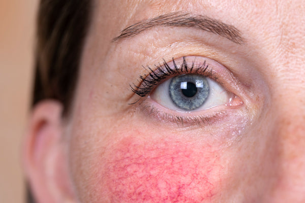 Redness is common with rosacea